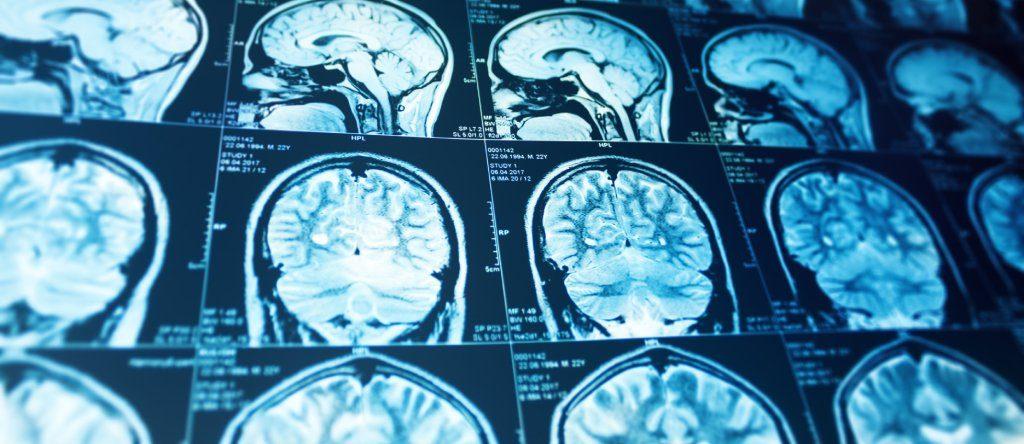 Neurocirugía - Dr. Fernando Durand Neyra